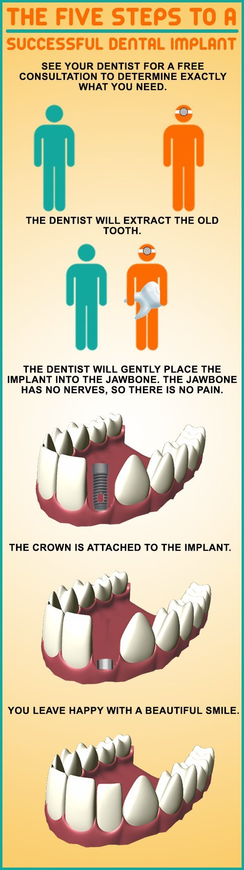 Successful Dental Implant