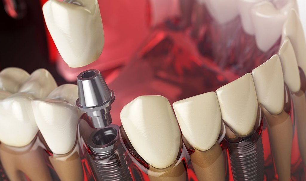 Tooth implant in the model human teeth, gums and denturas.