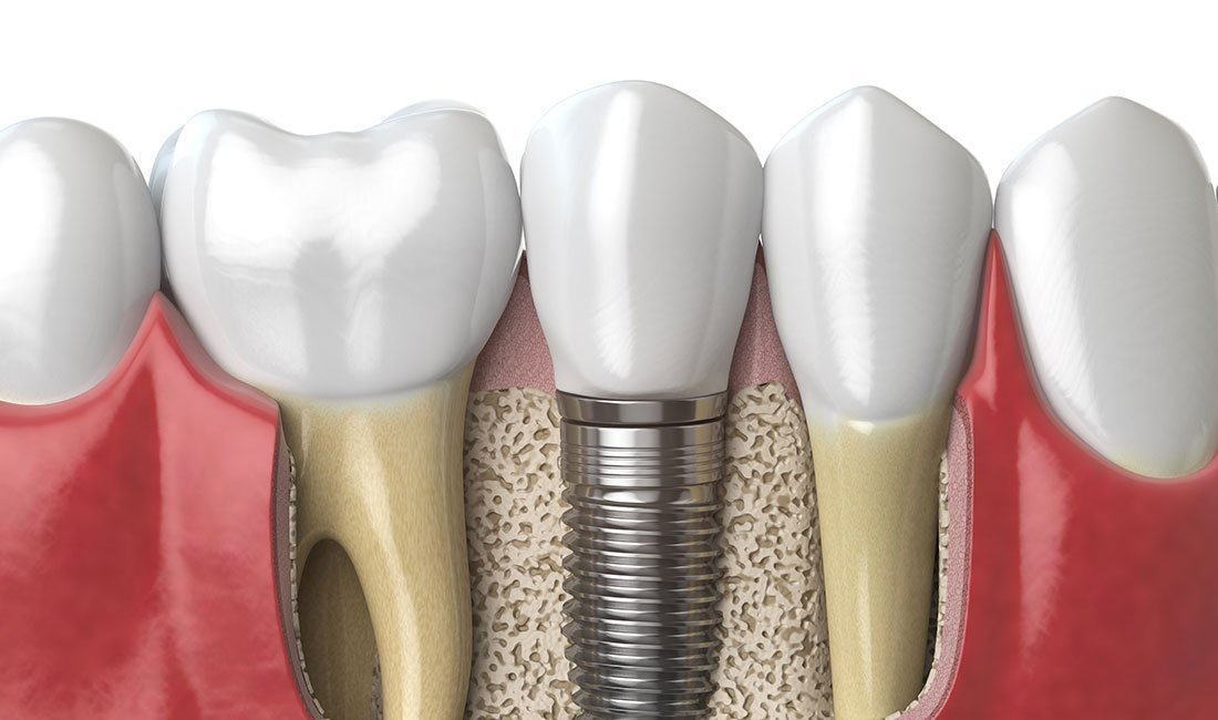 Anatomy of healthy teeth and tooth dental implant