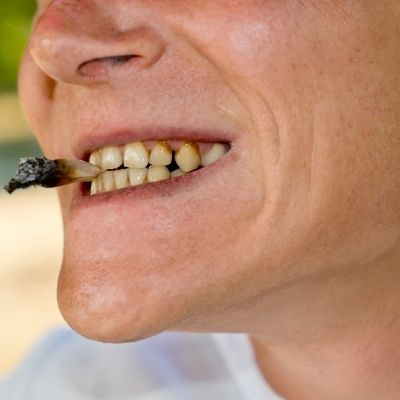 Yellow Teeth - Smoking - Kenosha Dentist
